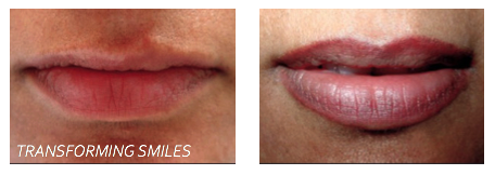 Cleft palate lip tattooing treatments