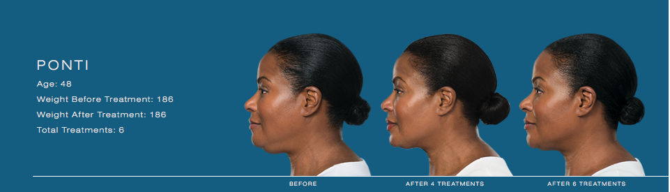 Kybella Treatment results Double Chin liposuction chin