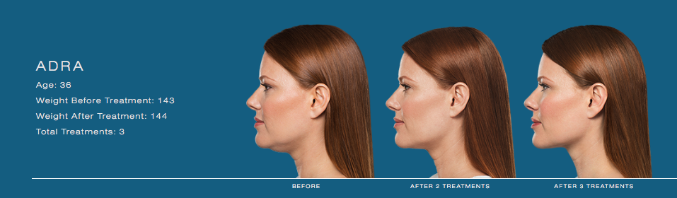 Double Chin Kybella Liposuction submental chin