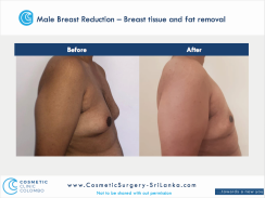 Male Breast Reduction Male Breast Reduction Gyneacomastia Gynecomastia Dr Thushan Sri Lanka Cosmetic Surgery Moobs.