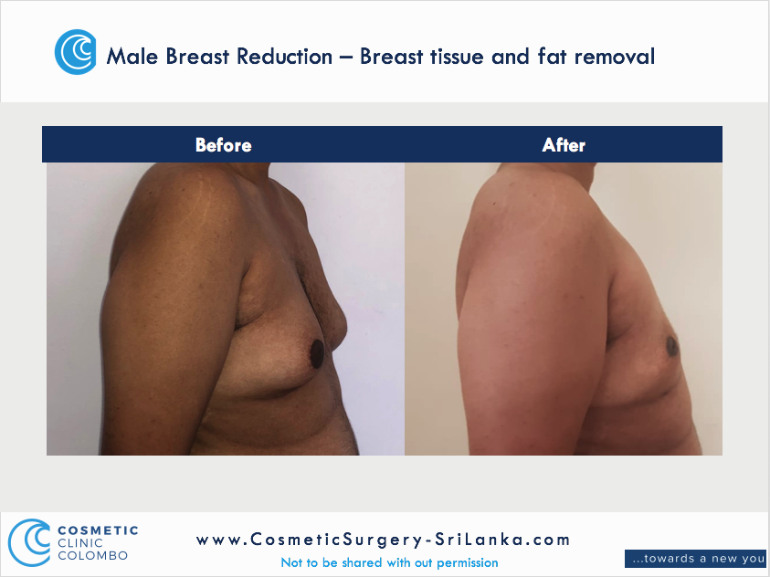 Male Breast Reduction Male Breast Reduction Gyneacomastia Gynecomastia Dr Thushan Sri Lanka Cosmetic Surgery Moobs.