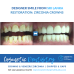 DENTAL SRI LANKA CROWNS VENEERS