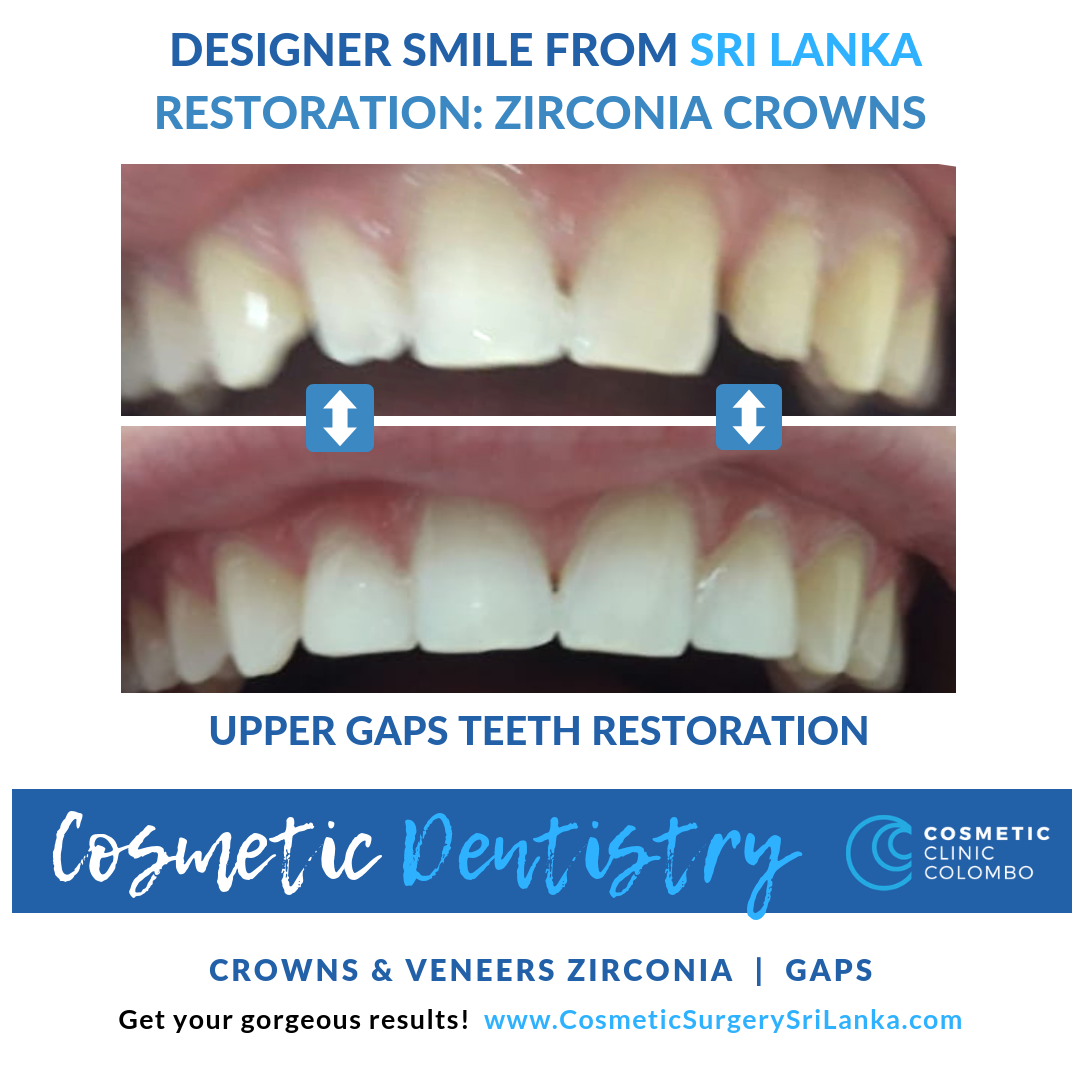 Dental Veneers Crowns And Dental Implants Cosmetic Surgery Sri
