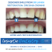 Dental Sri Lanka Crowns Teeth Whitening