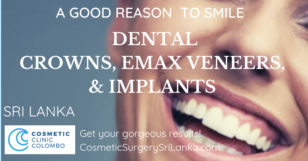 Dental Crowns Veneers implants EMAX Zirconia teeth whitening Sri Lanka