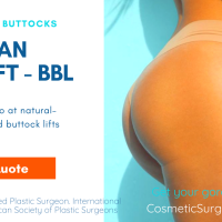 Buttock Enlargement - Brazilian Butt Lift