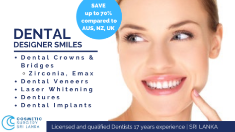Dental Crowns bridges veneers implants sri lanka