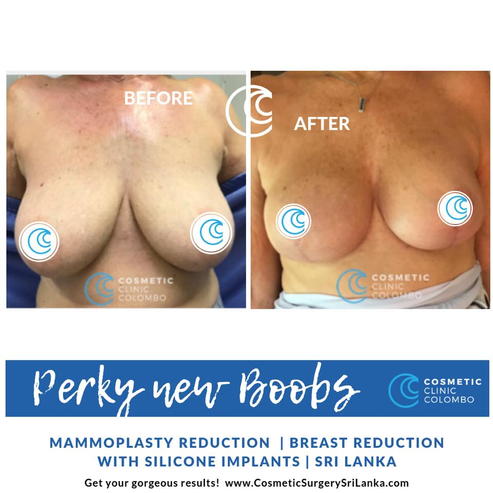 Breast Reduction Breast Lift SRI LANKA