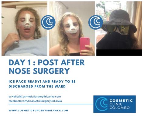 nose surgery sri lanka cost  dr dulip