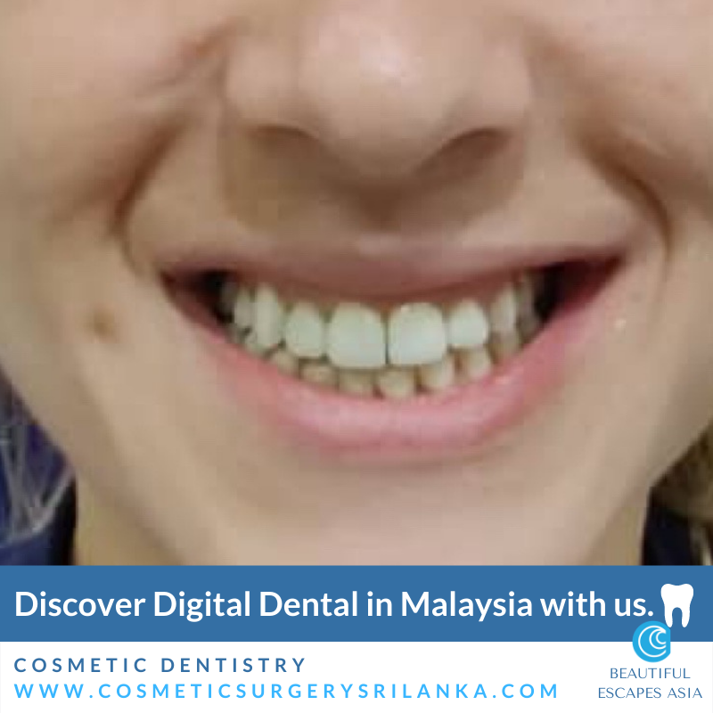 Results Zirconia crown Malaysia Digital Smile makeover
