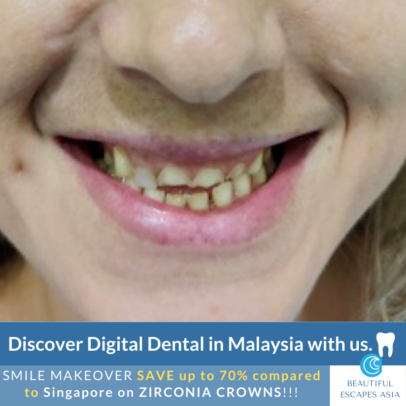 Before SMILE makeover Crowns Malaysia
