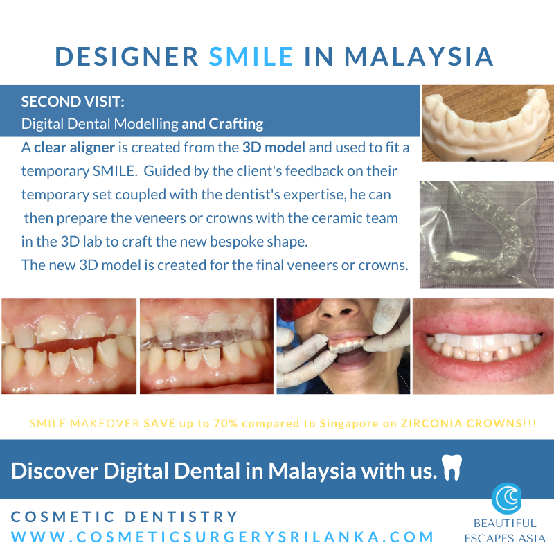 SMILE MAKEOVER MALAYSIA Digital Dentist Dental zirconia crowns emax venners