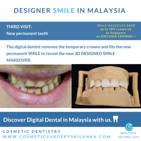 SMILE MAKEOVER MALAYSIA zirconia crowns emax venners