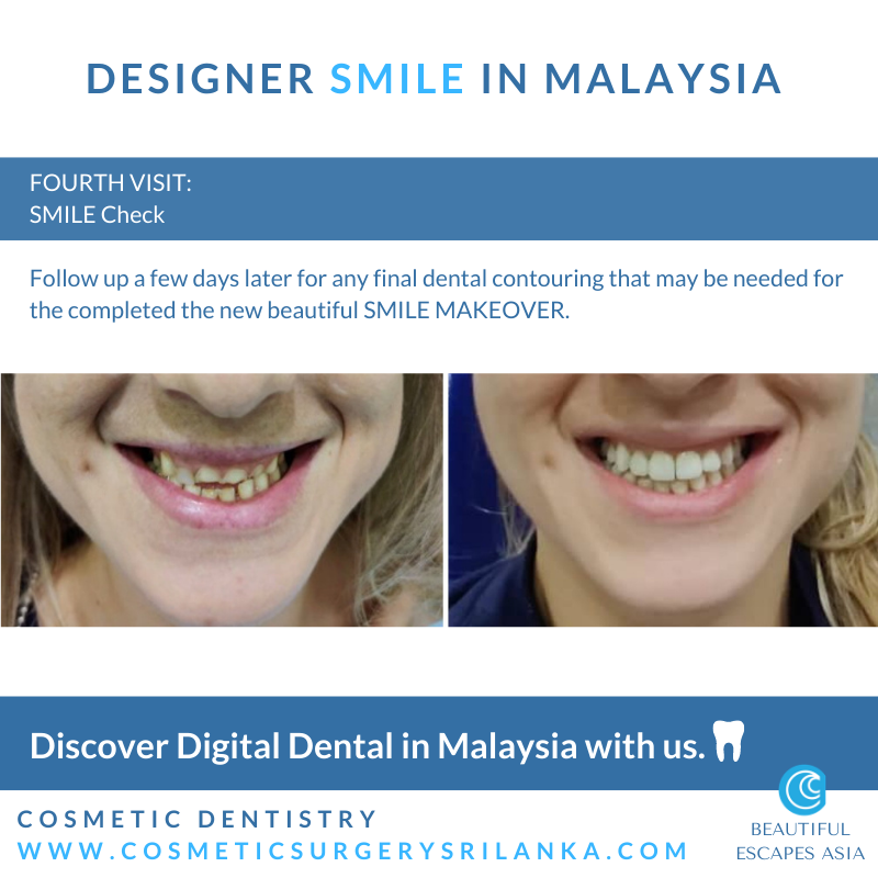 SMILE MAKEOVER MALAYSIA Digital Dentist Dental Digital zirconia crowns emax venners