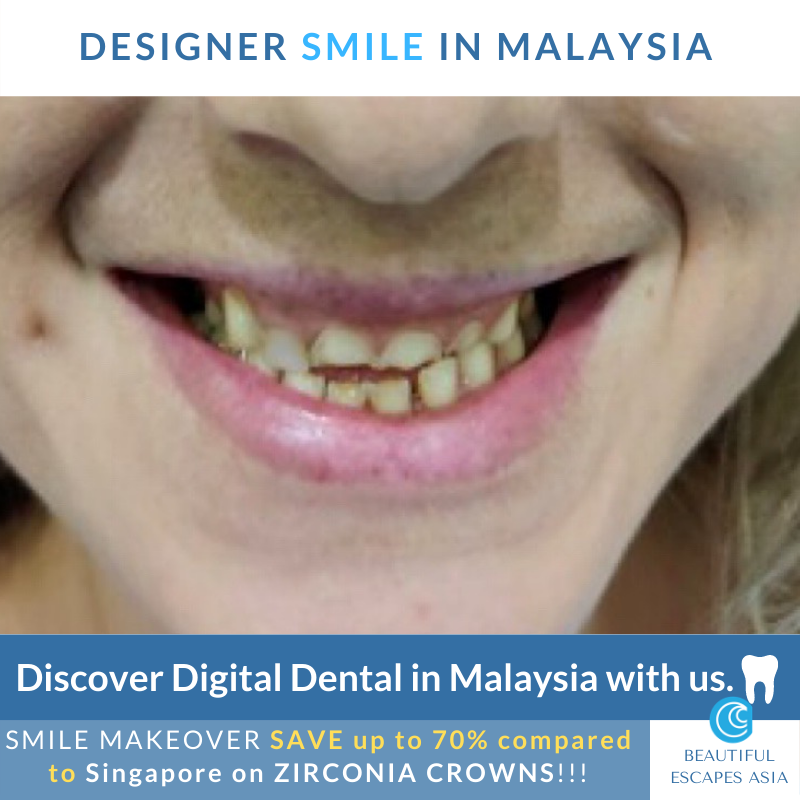 Smile Makeover before Zirconia Crowns Malaysia