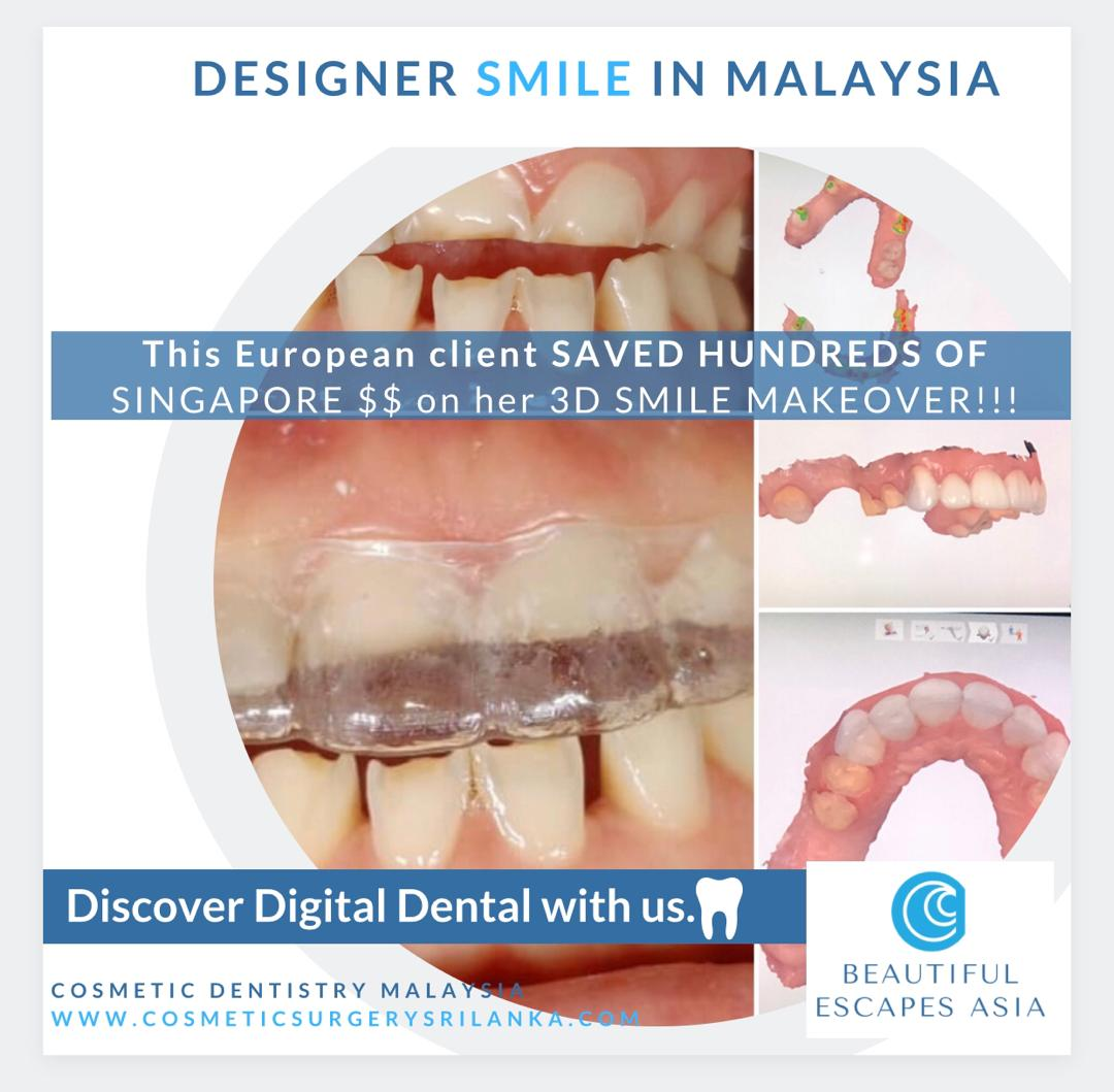 DENTAL MALAYSIA DIGITAL PROCESS zirconia crowns smile makeover