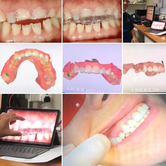 Digital Dental Malaysia zirconia crowns implants