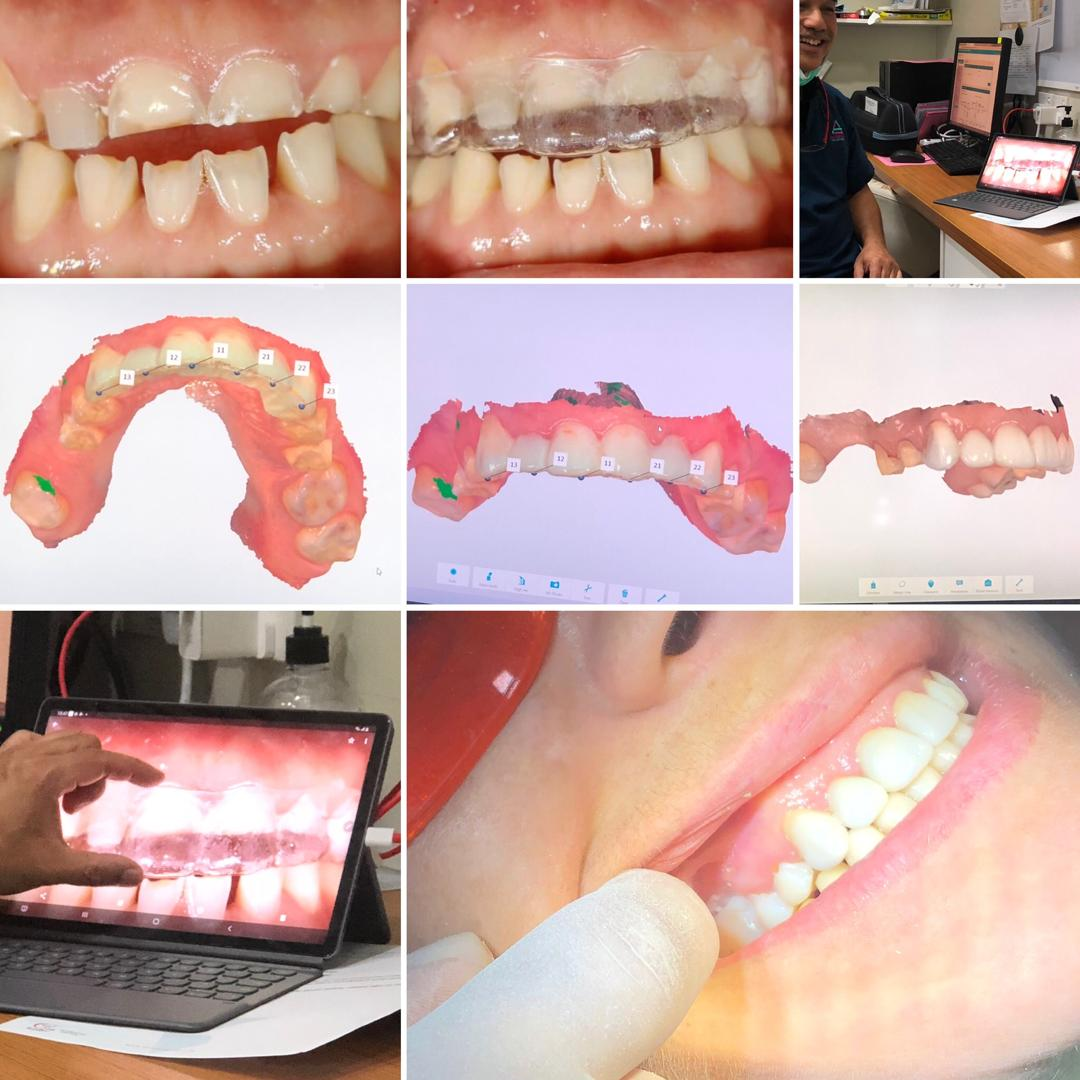 Dental Zirconia Crowns Digital Dental Malaysia